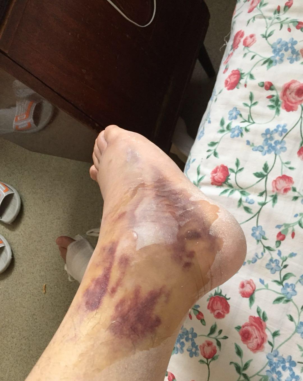 2017年10月因为需要去莫斯科参加活动,但是寝室门锁上了于是试图从二楼走水管下去,结果不慎摔断脚,这是在医院的照片